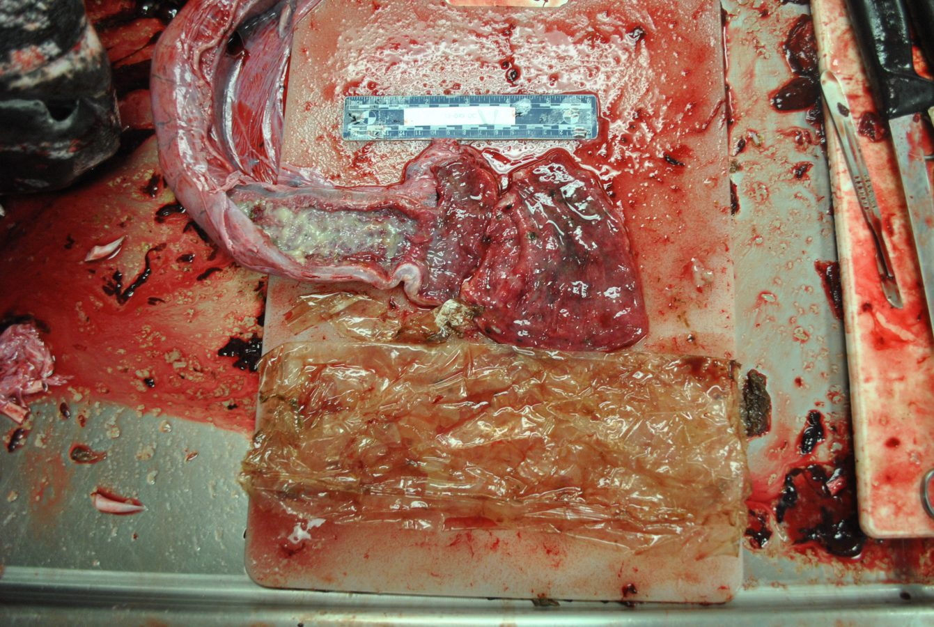 turtle intestine during necropsy and plastic pulled from stomach